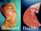diseased liver